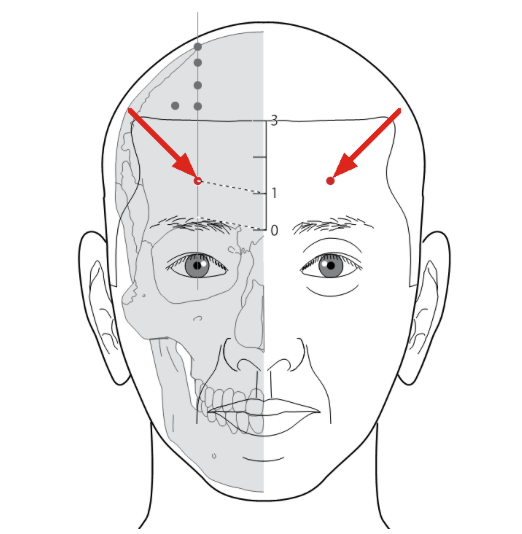 Can Chinese Medicine and Acupuncture treat Headaches? - Debbie Lee